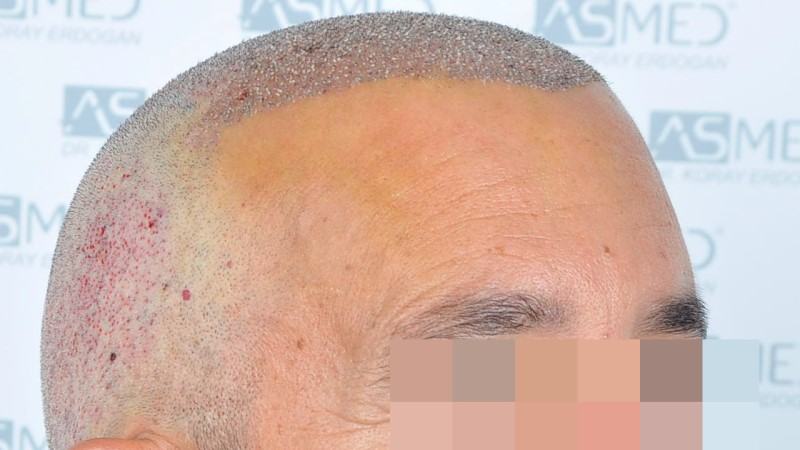 https://www.hairtransplantfue.org/asmed-hair-transplant-result/upload/norwood4/5022-grafts-FUE-2/operation/_DSC2874_V2.jpg