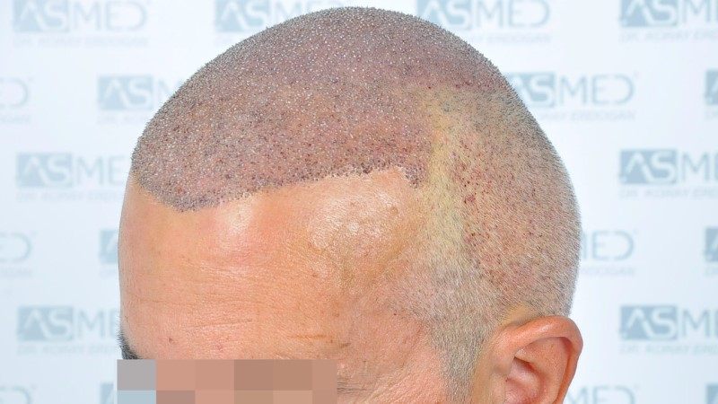 https://www.hairtransplantfue.org/asmed-hair-transplant-result/upload/norwood4/5022-grafts-FUE-2/operation/_DSC2877_V2.jpg