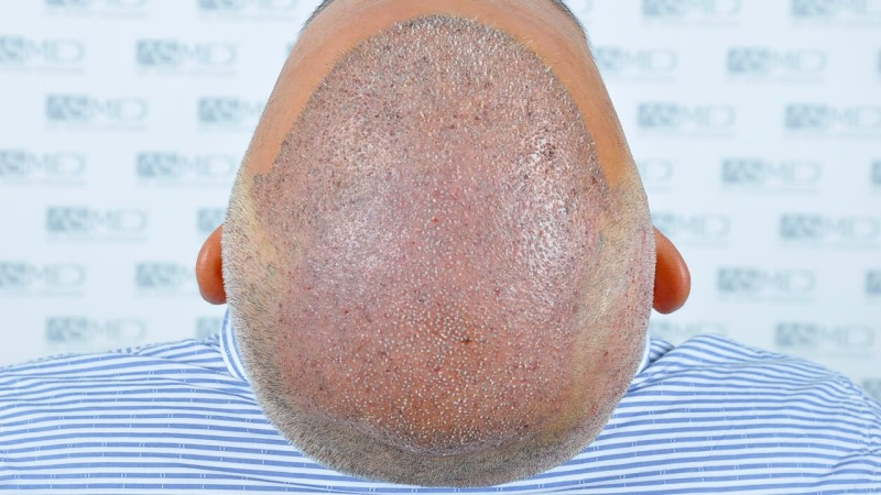 https://www.hairtransplantfue.org/asmed-hair-transplant-result/upload/norwood4/5022-grafts-FUE-2/operation/_DSC2881_V2.jpg