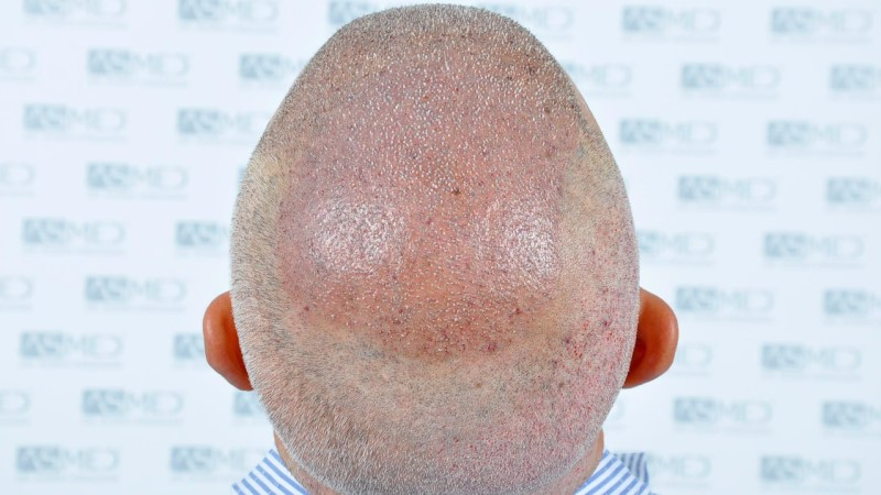 https://www.hairtransplantfue.org/asmed-hair-transplant-result/upload/norwood4/5022-grafts-FUE-2/operation/_DSC2882_V2.jpg