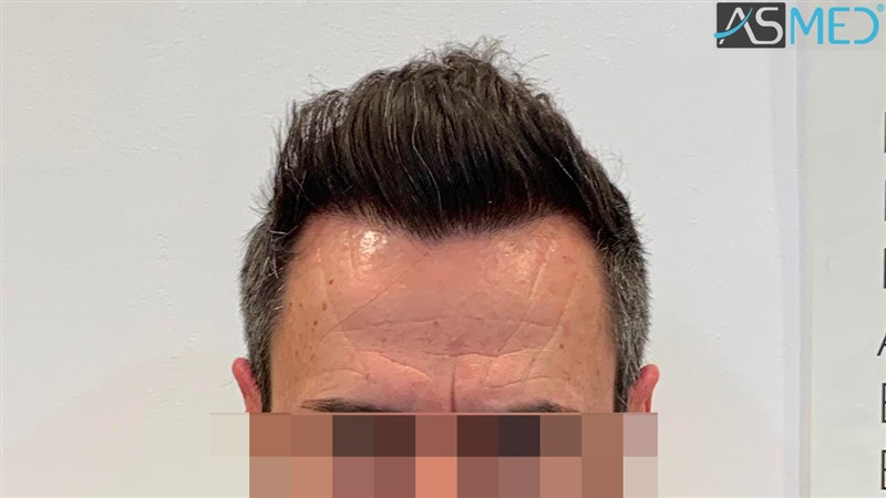 https://www.hairtransplantfue.org/asmed-hair-transplant-result/upload/norwood4/5022-grafts-FUE/after6-13months/13%20months1_V2.jpg