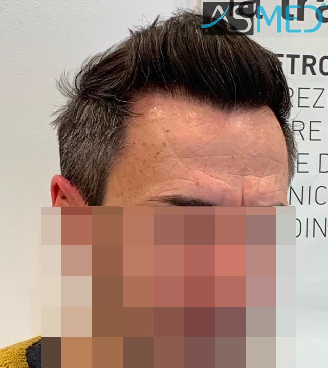 https://www.hairtransplantfue.org/asmed-hair-transplant-result/upload/norwood4/5022-grafts-FUE/after6-13months/13%20months2_V2.jpg