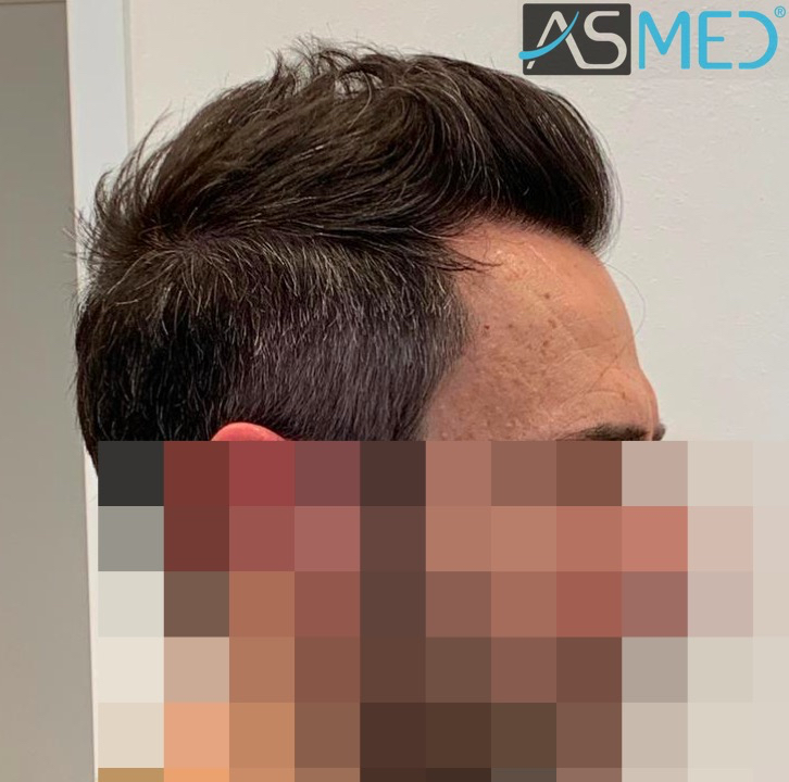 https://www.hairtransplantfue.org/asmed-hair-transplant-result/upload/norwood4/5022-grafts-FUE/after6-13months/13%20months3_V2.jpg