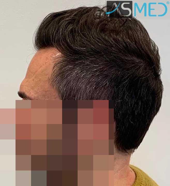 https://www.hairtransplantfue.org/asmed-hair-transplant-result/upload/norwood4/5022-grafts-FUE/after6-13months/13%20months4_V2.jpg