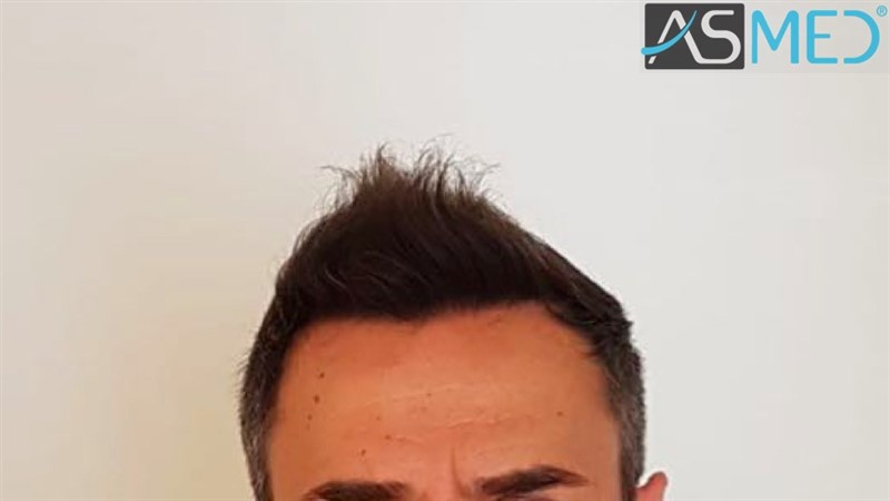 https://www.hairtransplantfue.org/asmed-hair-transplant-result/upload/norwood4/5022-grafts-FUE/after6-13months/6%20months%205_V2.jpg