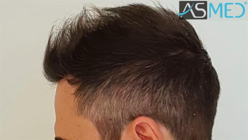 https://www.hairtransplantfue.org/asmed-hair-transplant-result/upload/norwood4/5022-grafts-FUE/after6-13months/6months%204_V2.jpg
