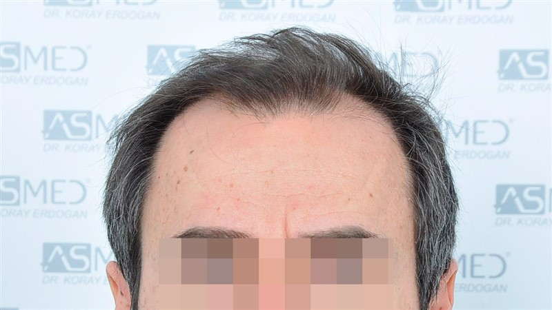 https://www.hairtransplantfue.org/asmed-hair-transplant-result/upload/norwood4/5022-grafts-FUE/before/Before1_V2.jpg