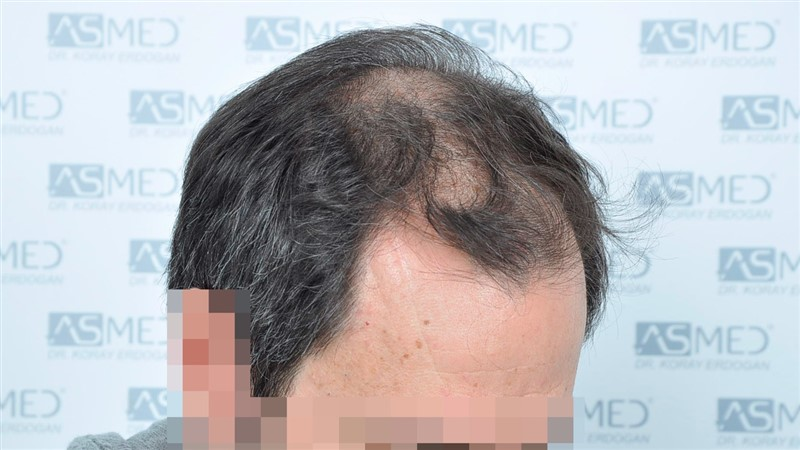https://www.hairtransplantfue.org/asmed-hair-transplant-result/upload/norwood4/5022-grafts-FUE/before/Before2_V2.jpg