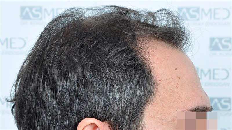 https://www.hairtransplantfue.org/asmed-hair-transplant-result/upload/norwood4/5022-grafts-FUE/before/Before3_V2.jpg