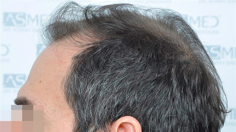 https://www.hairtransplantfue.org/asmed-hair-transplant-result/upload/norwood4/5022-grafts-FUE/before/Before4_V2.jpg