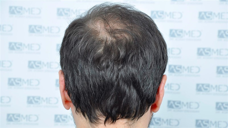 https://www.hairtransplantfue.org/asmed-hair-transplant-result/upload/norwood4/5022-grafts-FUE/before/Before5_V2.jpg