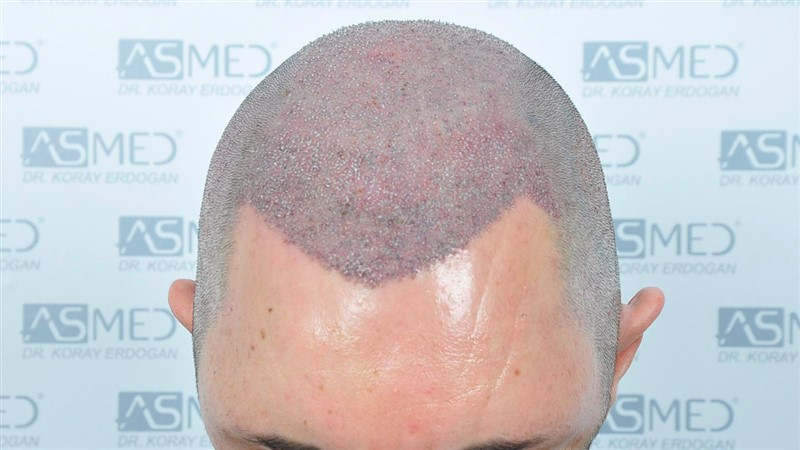 https://www.hairtransplantfue.org/asmed-hair-transplant-result/upload/norwood4/5022-grafts-FUE/operation/Operation1_V2.jpg