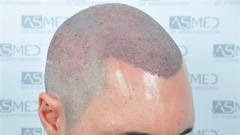 https://www.hairtransplantfue.org/asmed-hair-transplant-result/upload/norwood4/5022-grafts-FUE/operation/Operation2_V2.jpg