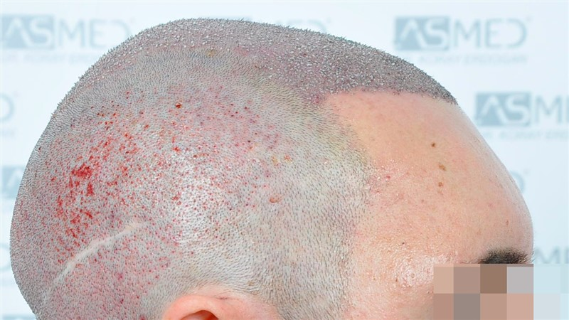 https://www.hairtransplantfue.org/asmed-hair-transplant-result/upload/norwood4/5022-grafts-FUE/operation/Operation3_V2.jpg