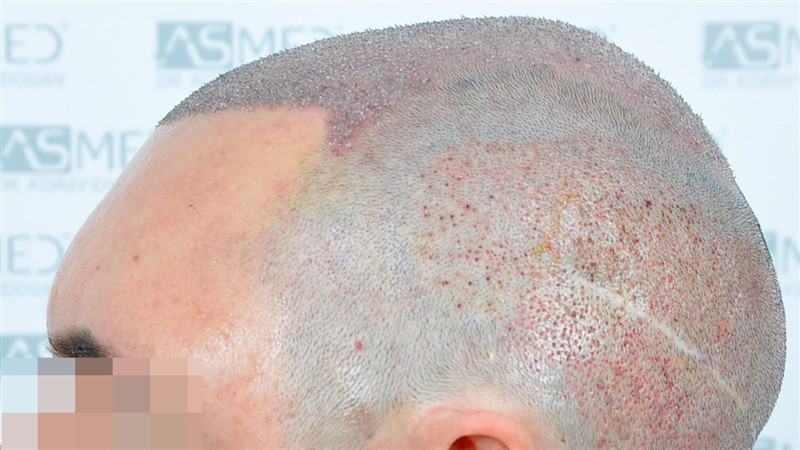 https://www.hairtransplantfue.org/asmed-hair-transplant-result/upload/norwood4/5022-grafts-FUE/operation/Operation4_V2.jpg