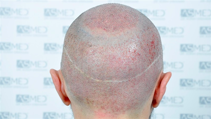 https://www.hairtransplantfue.org/asmed-hair-transplant-result/upload/norwood4/5022-grafts-FUE/operation/Operation6_V2.jpg