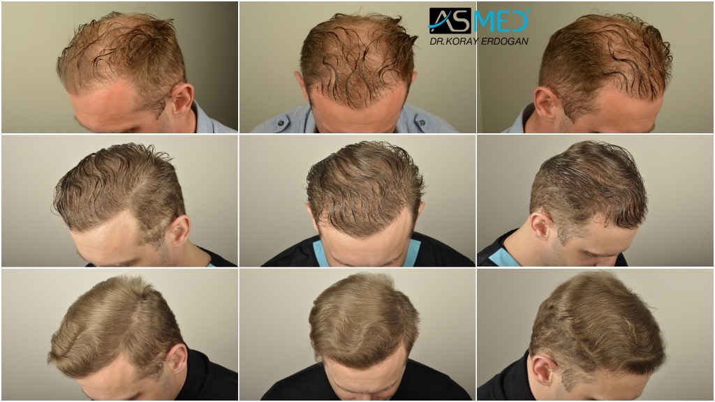 Dr Koray Erdogan - 6902 grafts FUE (2700 FUE + 4202 FUE)